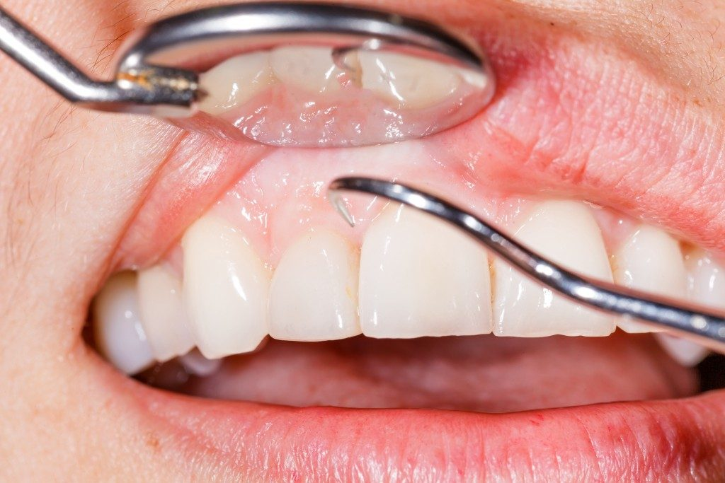 Closeup photo of a dental examination