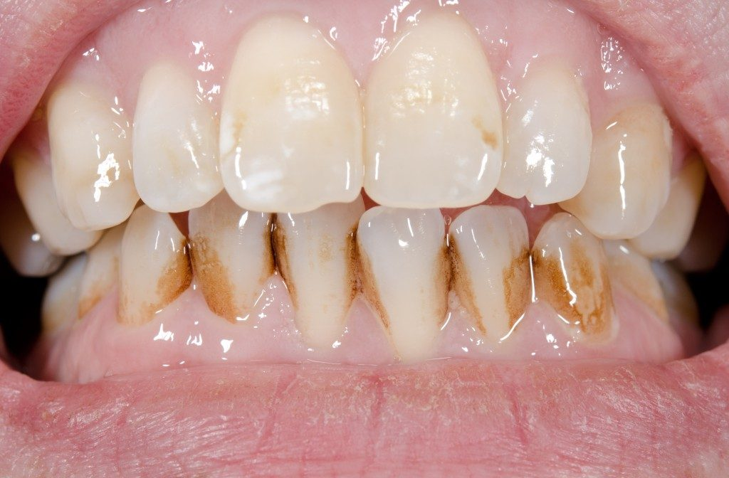 Teeth with brown stains