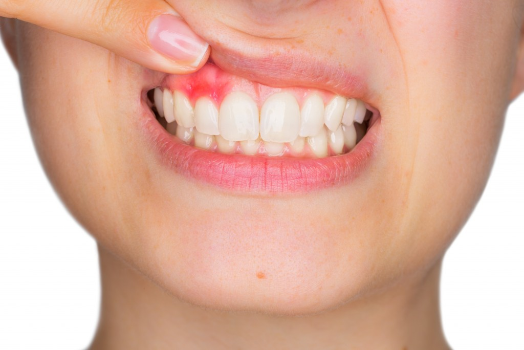 Woman showing her inflamed gum