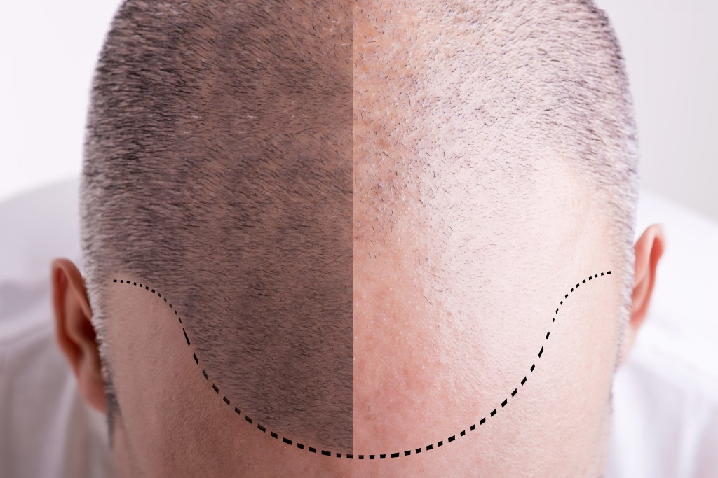 Top view of a men's head with a receding hair line - Before and After