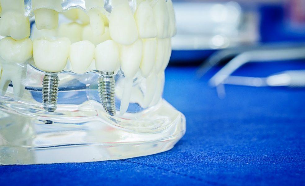 sample teeth