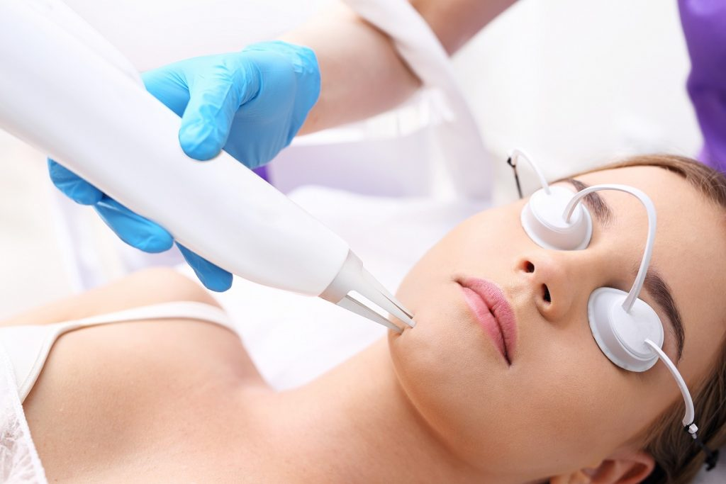 hair removal using laser