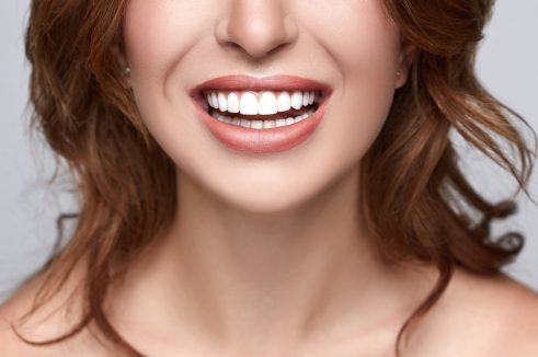 person with staright, white teeth