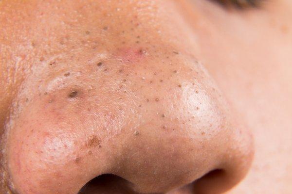 depositphotos_86003464-stock-photo-closeup-of-pimple-blackheads-on